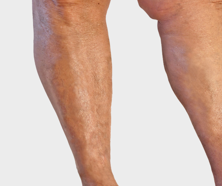 After treatment spider veins