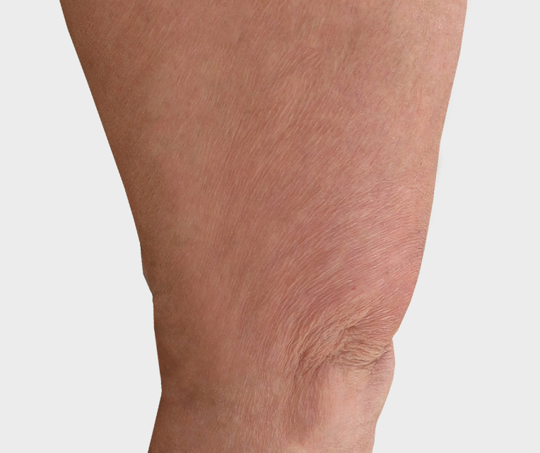 Photo spider veins after treatment