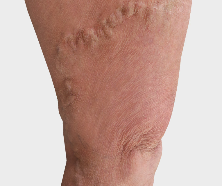 Photo spider veins before treatment